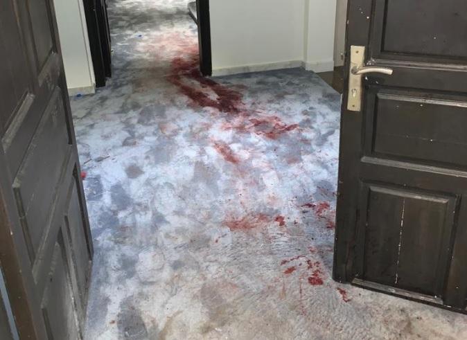 """دماء ورصاص.. لقطات مفاجئة تحسم رويات المعركة داخل قصر """"الملك سلمان"""" (صور)"""
