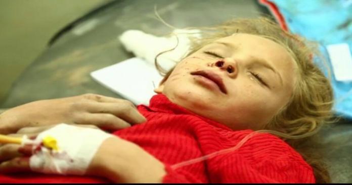 مجازر على يد النظام السوري والتحالف الدولي والYPG بدير الزور والرقة
